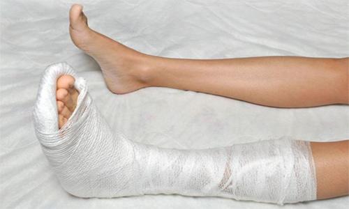 Перелом ноги, полученный вне рабочее время